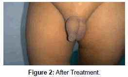 clinical-images-case-reports-After-treatment
