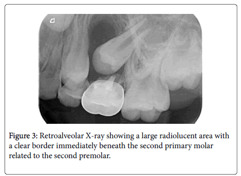 dental-health-second-primary