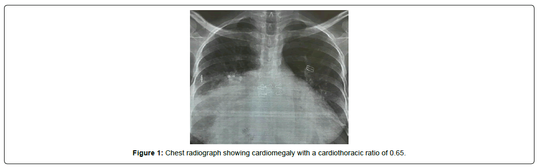 international-journal-of-cardiovascular-research-chest-radiograph