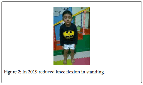 physiotherapy-rehabilitation-reduced-knee