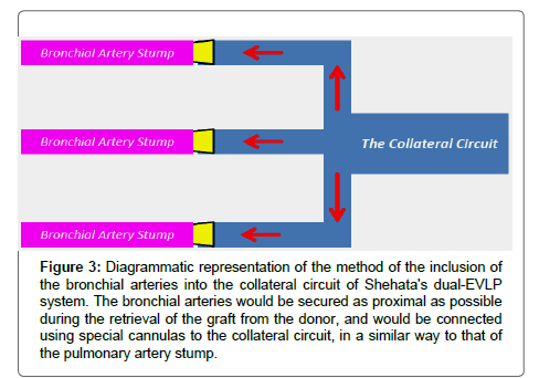 pulmonary-medicine-collateral-circuit