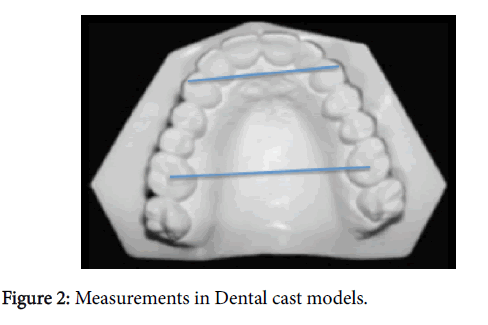 sleep-disorders-dental-cast-models