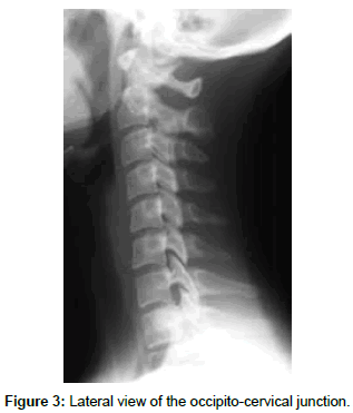 spine-neurosurgery-Lateral-view