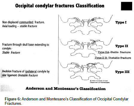 spine-neurosurgery-Occipital-Condylar