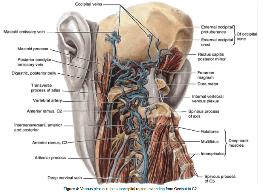 Cranio Cervical Trauma Eidemiology Classification Diagnosis And