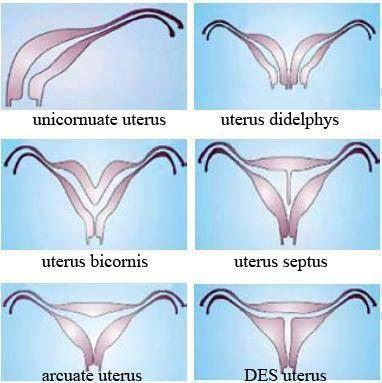 Unicornuate Uterus with Hematometra