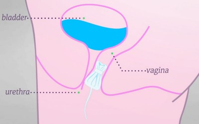 MiniArc Sling for the Treatment of Female Stress Urinary Incontinence