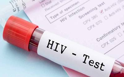 The Role of Adult Male Circumcision in the Prevention of HIV/AIDS- Does the Technique Make a Difference?