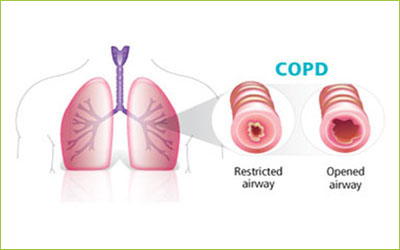Chronic Obstructive Lung Disease, Stem Cells and Telocytes: Review of Therapeutic