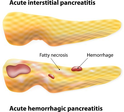 Inflammation and Pancreatic Cancer: A Tale of Two Cytokines
