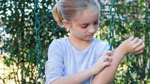 Climate Change Impact on Skin in Children