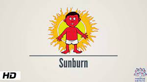 Sunburn: Causes, Signs and Prevention