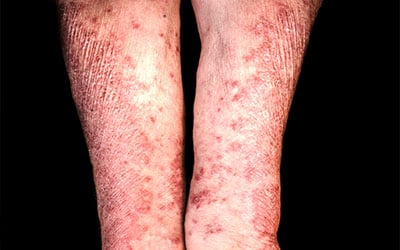 Psoriasis Management; Patient Feedback and Healthcare Limitations