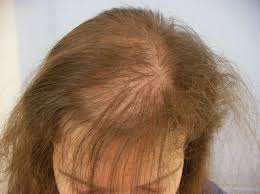 """""""Nail-Like Appearance"""": Characteristic Feature of Hair Fracture Caused by Hair Dye under Dermoscopy"""