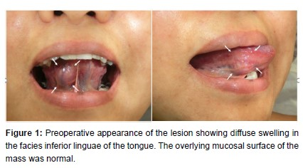 Angioleiomyoma in the Facies Inferior Linguae: A Rare Case and a Literature Review
