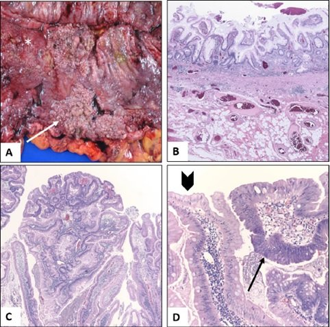 Elective Colectomy in a Patient with Active Ulcerative Colitis and Metastatic Melanoma Enabling Successful Treatment with Immune Checkpoint Inhibitors