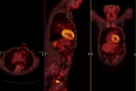 A Rare Form of Synchronous Lung Cancer: Mucoepidermoid Carcinoma