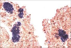 Primary Renal Angiosarcoma with Cutaneous Metastasis to the Skin