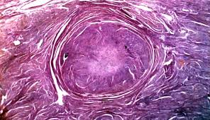 A Case of Primary Cutaneous Leiomyosarcoma Managed with Mohs Surgery