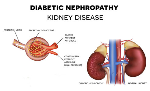 The Importance of Gene X Environment Interactions in Diabetic Nephropathy