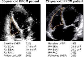 Peculiarity of Peripartum Cardiomyopathy (PPCM)
