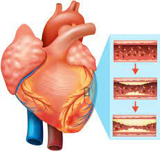 Effects of Cardiovascular Diseases in Men and Women