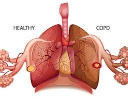Chronic Obstructive Pulmonary