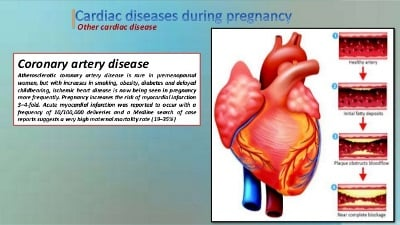Pregnancy with Heart Diseases in Egypt: Spectrum and Outcome