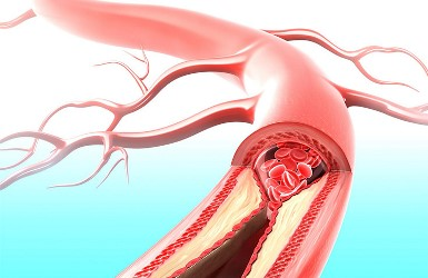 Acute Arterial Occlusion after Treatment of Heart Failure