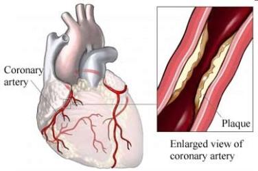 Statistical Methods of ECG Signal Processing in Diagnostics of Coronary Artery Disease