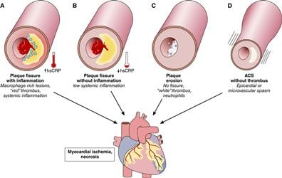 Defining Contrast-Induced Acute Kidney Injury Based on KDIGO (Kidney Disease: Improving Global Outcomes) Criteria Predicts Midterm Outcomes after Primary Percutaneous Coronary Intervention for Patients with Acute Coronary Syndrome