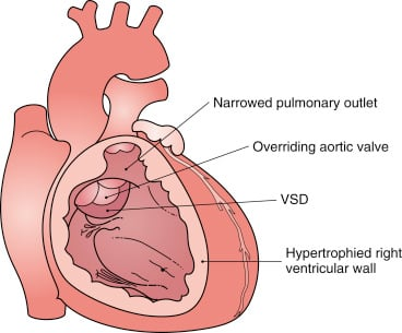 Surgical Management of Tetralogy of Fallot with Inadequate Size Pulmonary Artery Branches
