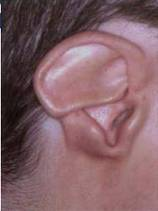 Progression of Autism in a Young Woman with CHARGE Syndrome: A Longitudinal Follow-up from Birth