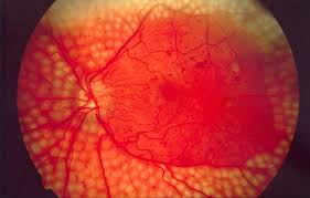 Short note on Diabetic Retinopathy