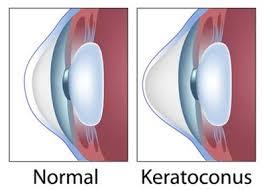 Successful Treatment of Keratoconus using Allogenic Fresh Myopic Lenticule Implantation and Autologous Serum