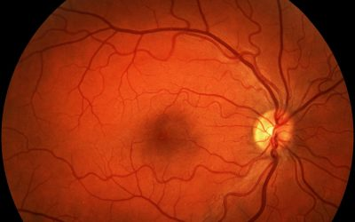 Progression and Incidence of Geographic Atrophy in Patients with Wet Age-Related Macular Degeneration undergoing Anti- VEGF Therapy