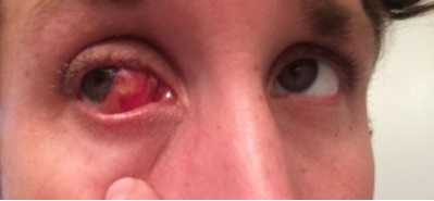 Recurrent Pterygium with Cilia Mimicking Ectopic Cilia