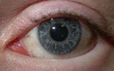 Papilledema as the Presenting Manifestation of Neurobrucellosis