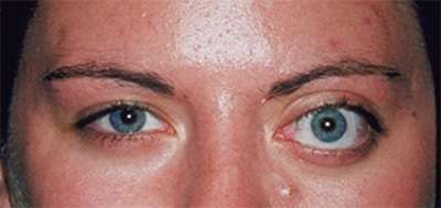 Eyelid Plexiform Neurofibroma: Atypical Presentation and Management
