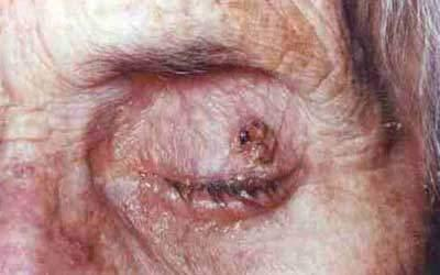 A Case Report: Extranodal Marginal Zone Lymphoma of the Eyelid