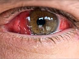 Conjunctival Kaposi Sarcoma Revealing HIV Infection