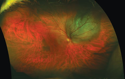 Diagnostic and Therapeutic Approach of the Malignant Choroidal Melanoma in a 12-Year-Old Child