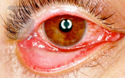 Conjunctival Impression Cytology in Computer Users