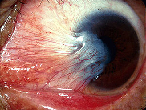 Conjunctival Growth Extending onto the Cornea? Think Beyond Just A Pterygium!