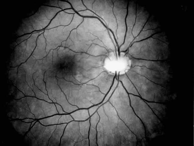 Peripapillary Retinal Nerve Fiber Thickness in Healthy French Children by Spectral-Domain Optical Coherence Tomography