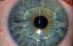 A Description of the Pathological Features of Rheumatoid Corneal Melt
