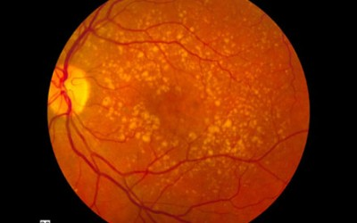 A Clinical Analysis of Age-Related Macular Degeneration in Qinghai Plateau