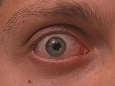 Evaluation for Dry Eye and Intra Ocular Pressure in Patients on Antihypertensive Medications