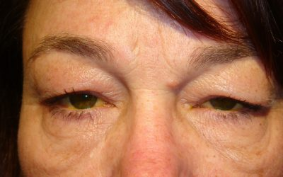 Complications Associated with the Surgical Techniques of Upper Eyelid Loading: A Clinicopathologic Study of 7 Explanted Gold Weight Lid Loads