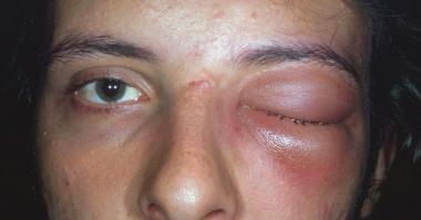 Primary Invasive Orbital Aspergillosis in an Immunocompetent Patient
